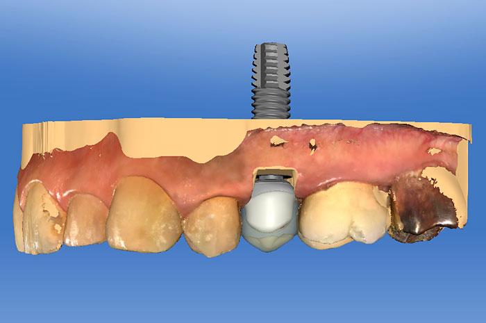 Level 3: Provisionalizing and Restoring Implants With CEREC