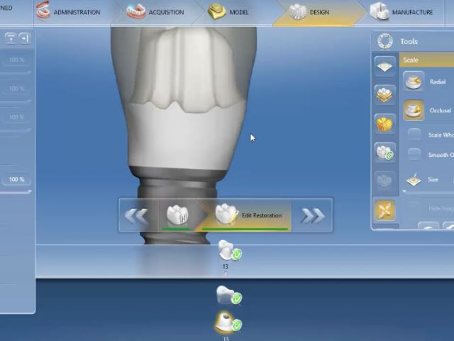4.6 Abutments - 9. Cement Retained - Part 2